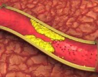Išsaugokime savo širdį ir kraujotakos sistemą – faktai ir rekomendacijos