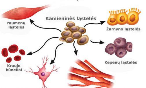 Kamienines ląsteles išsiaugink sau pats. Būdas – badavimas