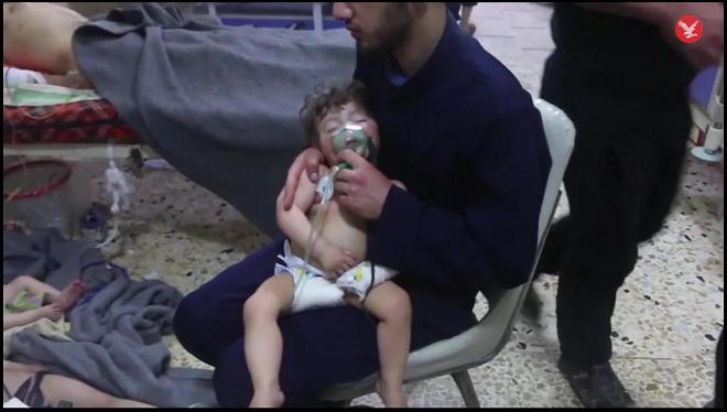 vaikai-Dumoje-deguonies-trukumas.jpg