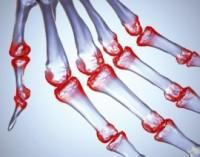 Artritas – vienintelė viltis juo sergantiems – mityba