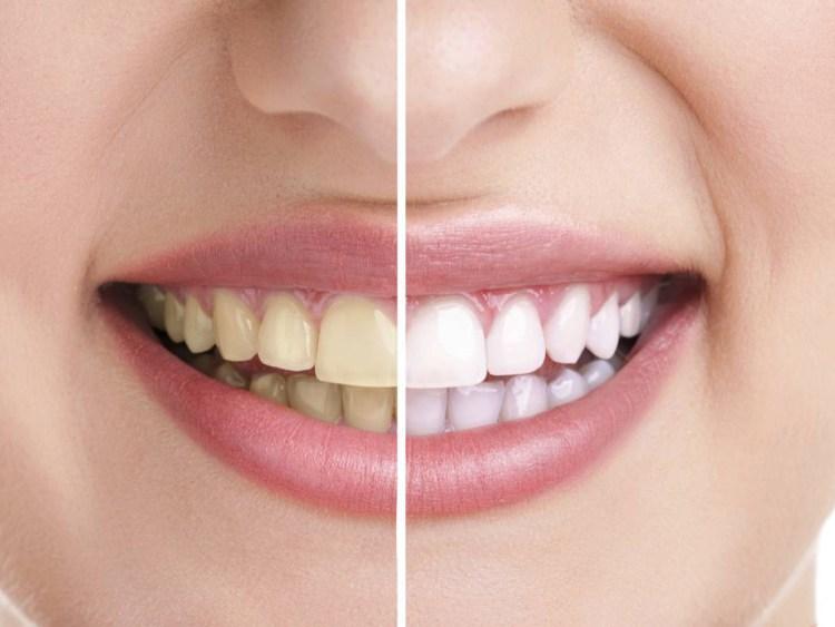 dantų apnašos