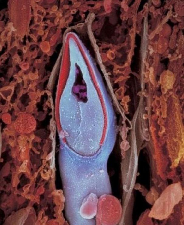 Skersinis spermatozoido pjūvis