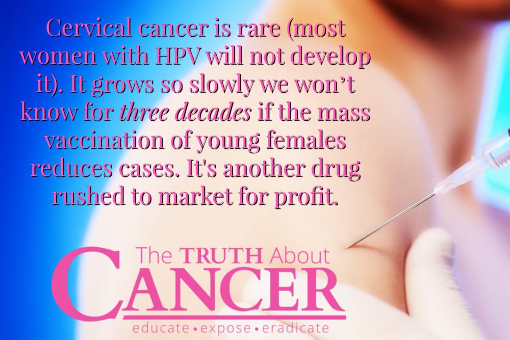 gimdos kaklelio vėžys