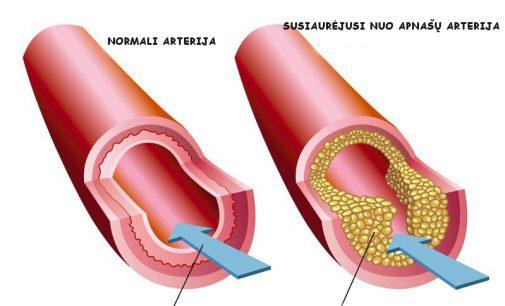 Kaip suvaldyti aterosklerozę