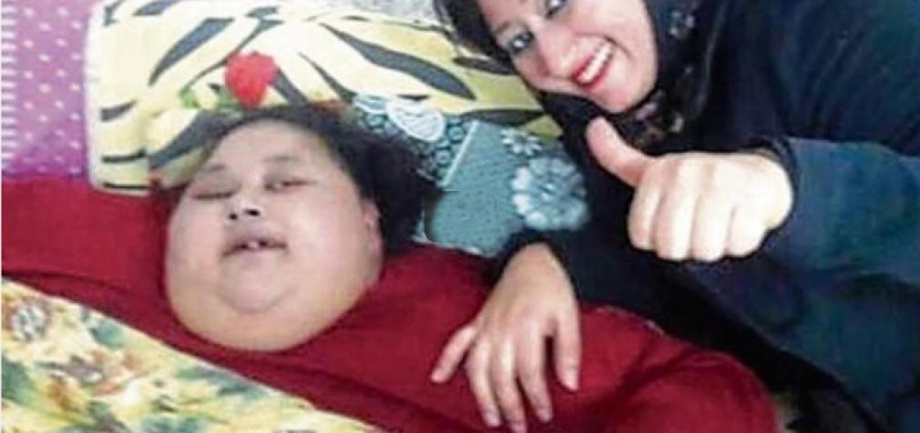 Daugiausiai sverianti moteris pasaulyje, po operacijos numetė 250 kilogramų