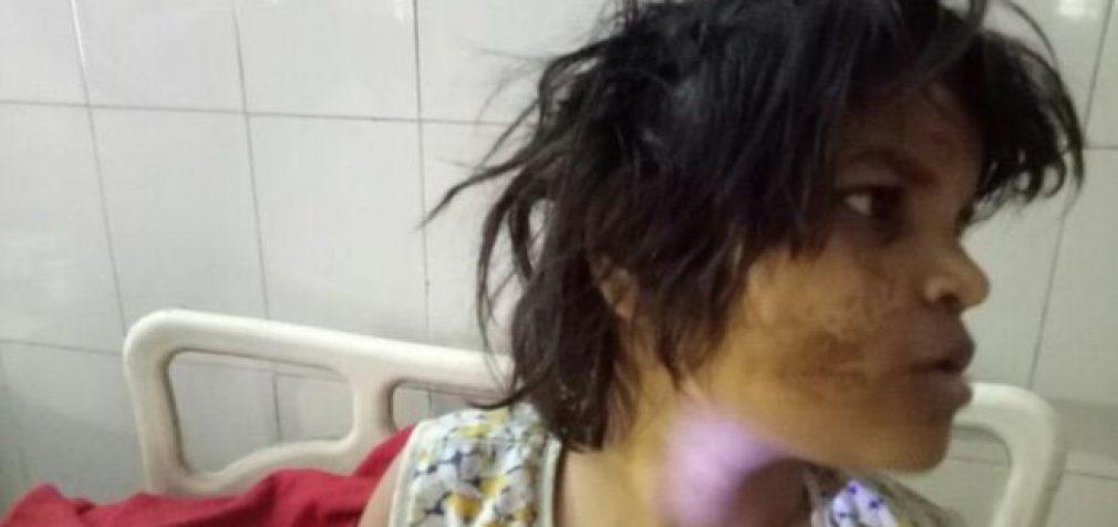 Draustinyje Indijoje atrasta gyvenusi su beždžionėmis mergaitė