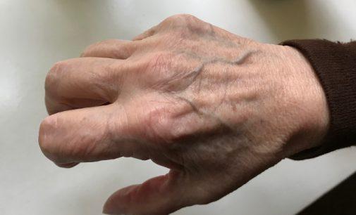 Gydytoja artritą įveikė grikiais ir badavimu