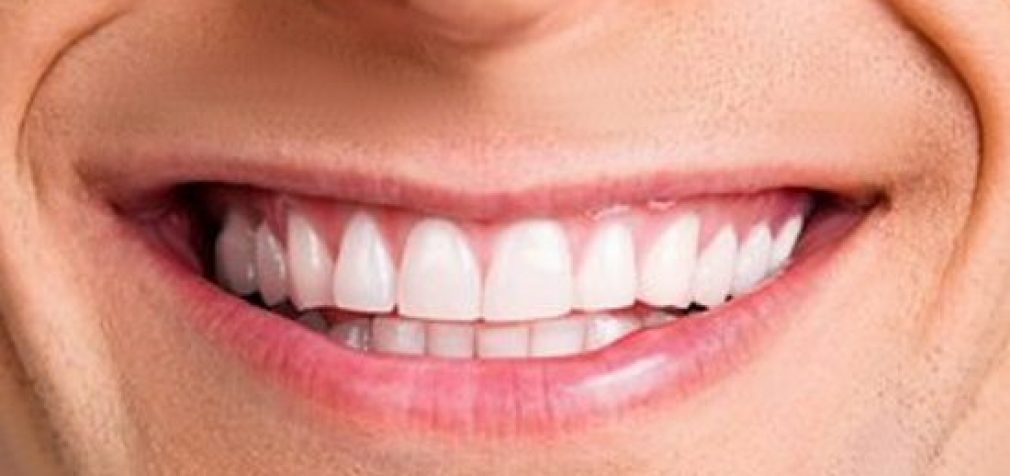 Nebūtina protezuoti dantis savo lėšomis