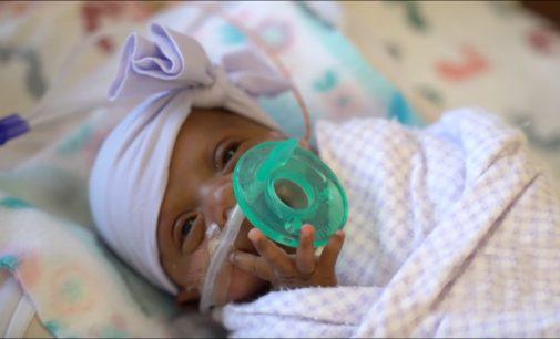 Gydytojai sugebėjo išsaugoti mergytės, tik gimus svėrusios 245 gr gyvybę