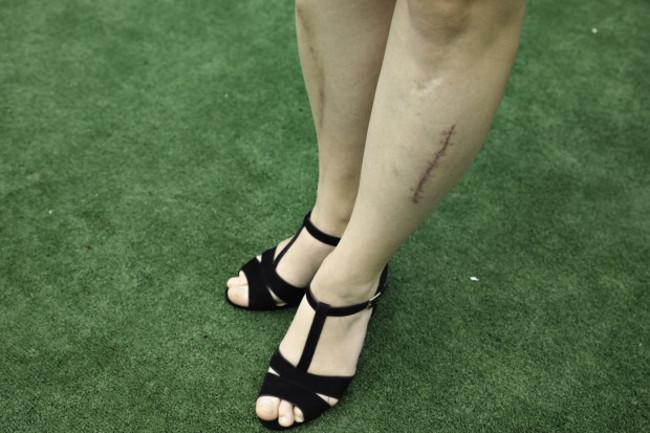 Sužalotos kojos