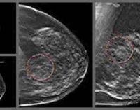 Hormoninės tabletės po menopauzės gali provokuoti dešimtmečius trunkančią krūties vėžio riziką