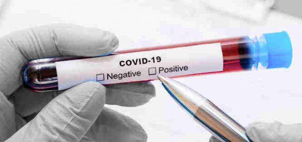 Praėjusią parą Lietuvoje nustatyta 10 užsikrėtusių koronavirusine infekcija asmenų