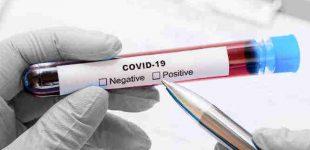 Mozeris Alvis. Darbdaviams apie darbuotojų sveikatos patikrinimus dėl Covid