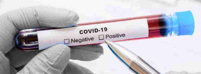 Vakar nustatyti 5 nauji koronaviruso infekcijos atvejai