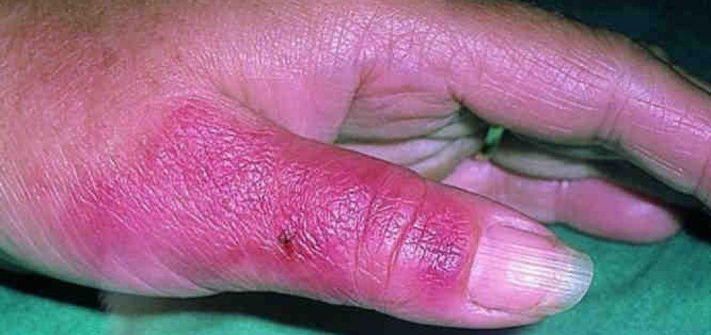 Kaip gydyti rožę – odos ligą – namų sąlygomis