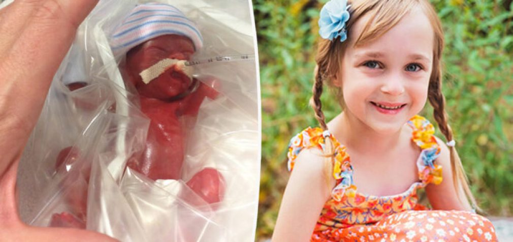 Nėščia mama pajunta kūdikio judesį, kai gydytojas siūlo abortą. Dabar tam kūdikiui šešeri ir jis žydi